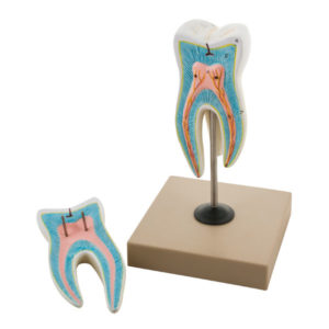 Eisco AM0046 - Upper Triple Root Molar with Caries Model- 2 Parts ...